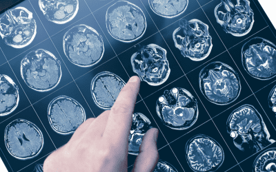 Vision Problems After Stroke: What to Know